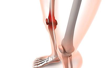 写真:膝痛・膝の痛み